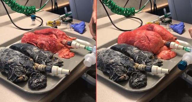 Video: Smoking v/s non-smoking lungs is going viral; will make everyone hate it immediately