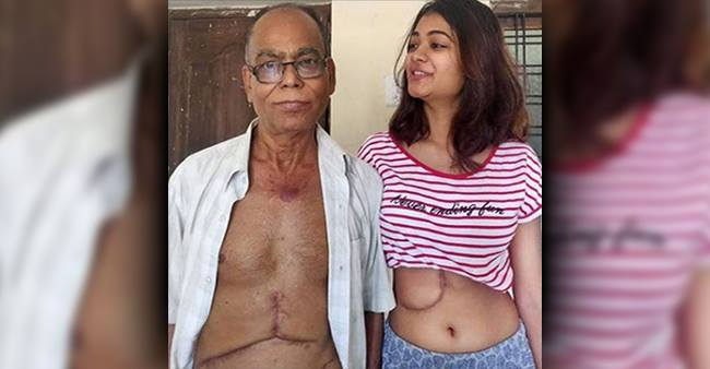A 19 YO girl donates liver to her dad to save him, motivating those who leave parents for no reason